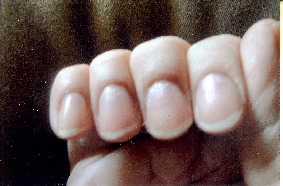 Biotin for Broken Nails - No Nonsense Beauty BlogNo Nonsense Beauty Blog