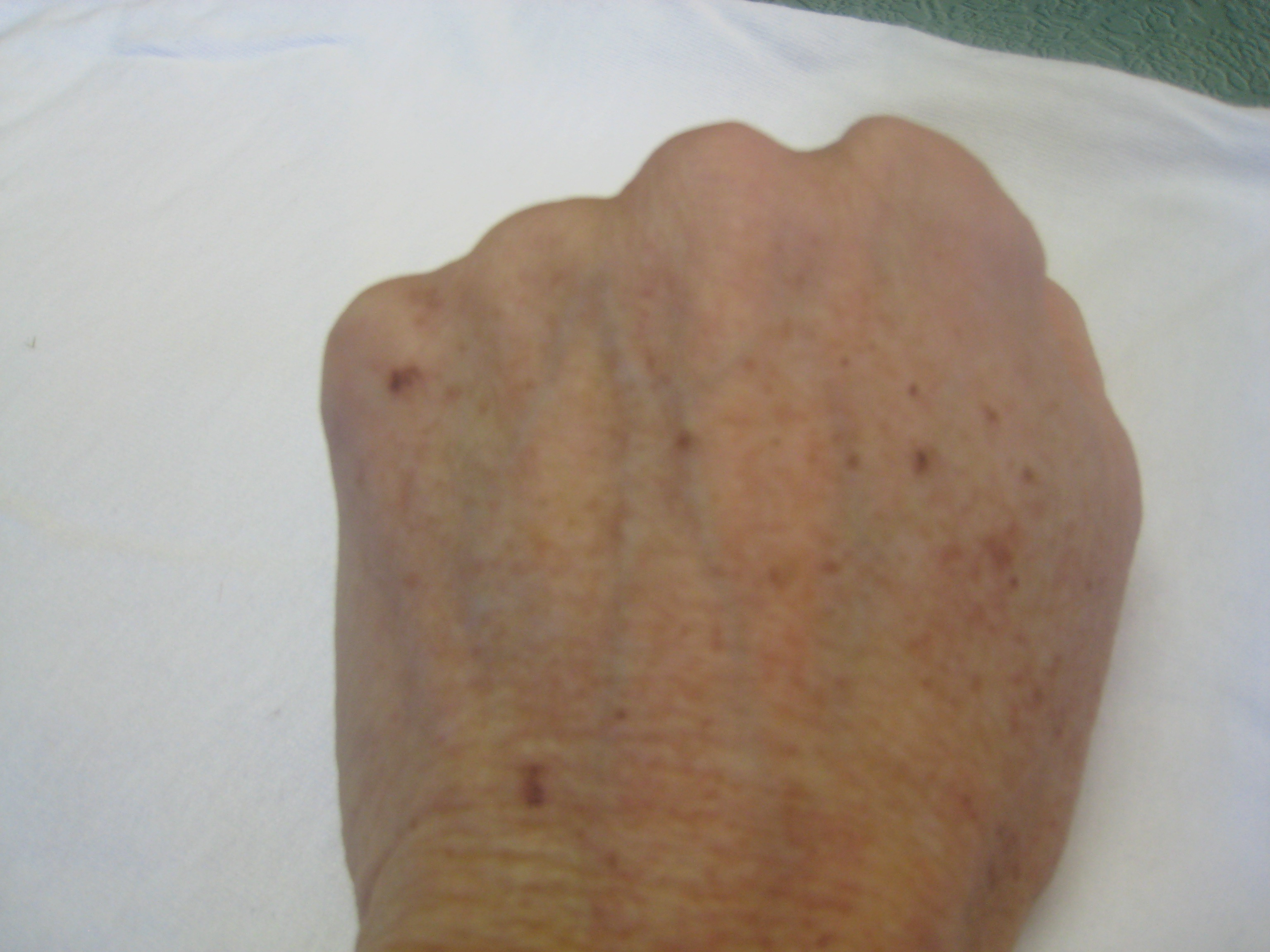 Red Spots On Hands